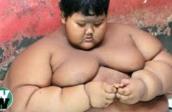 10 Obese Children Who Can